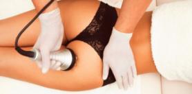 Кавитация вцентре медицинской косметологии икоррекции фигуры NonStop фото