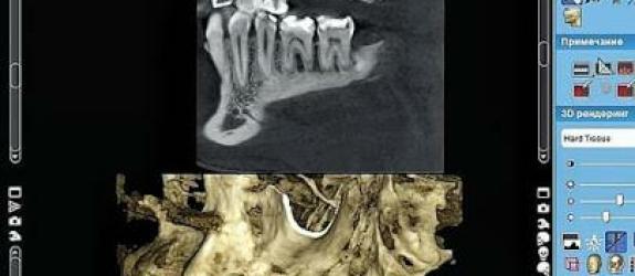 Стоматология Дентополис фото